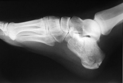 X-ray of fractured foot